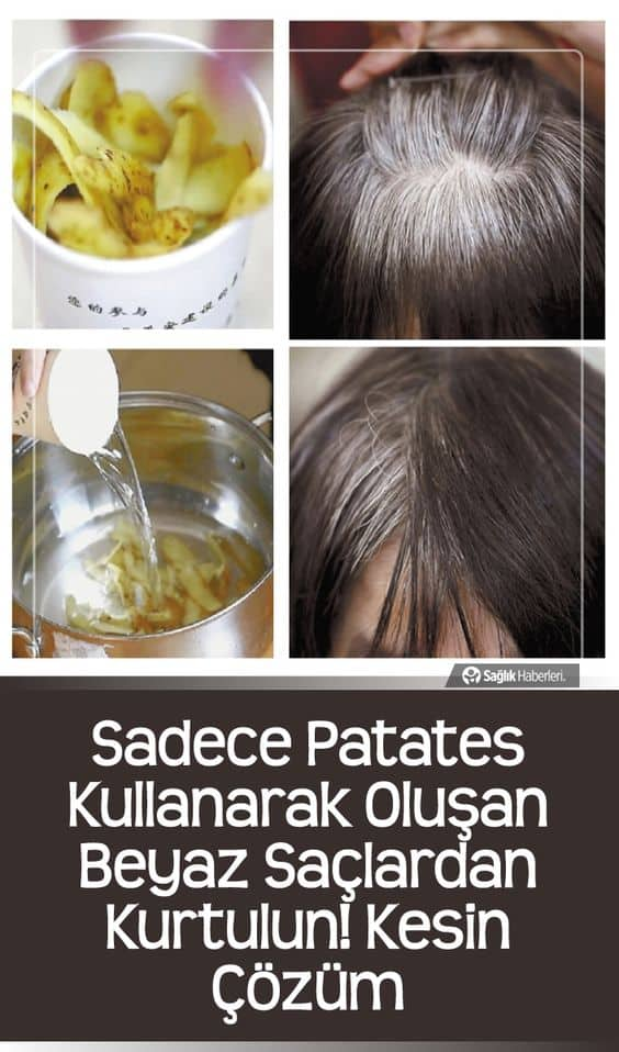 Sadece patates kullanarak oluşan beyaz saçlardan kurtulun! Kesin Çözüm