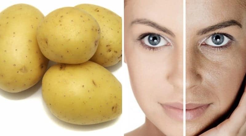 5 11 Pürüzsüz bir cilt için patates maskesi
