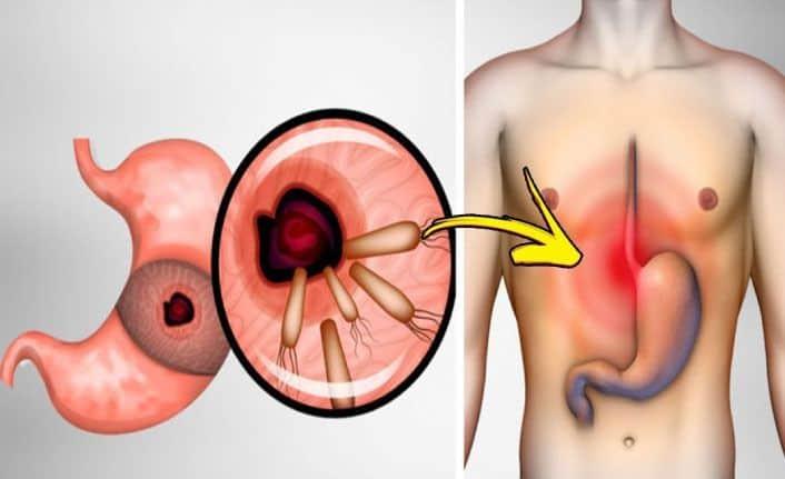 Helicobacter Pylori Nedir Mide Mikrobunun Doğal Tedavileri