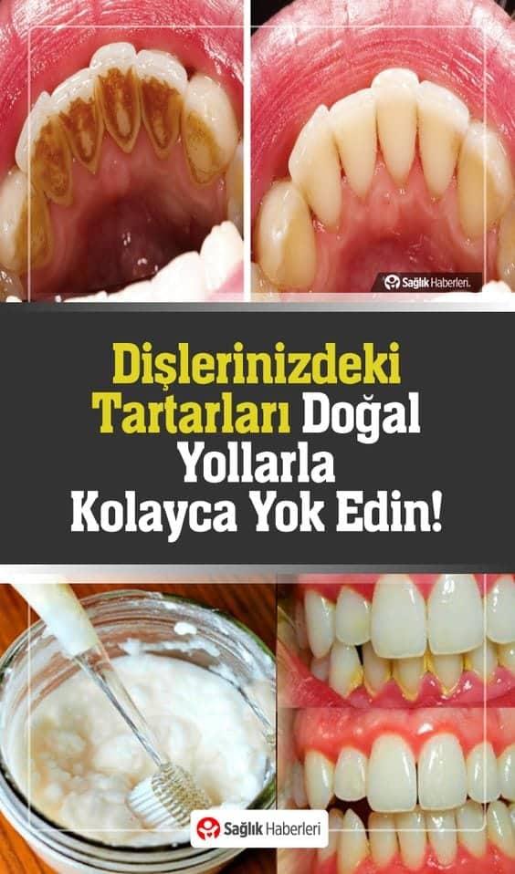 Dişçiye Gitmeden Diş Taşlarınızı Yok Edecek Ev Yapımı Karışım!