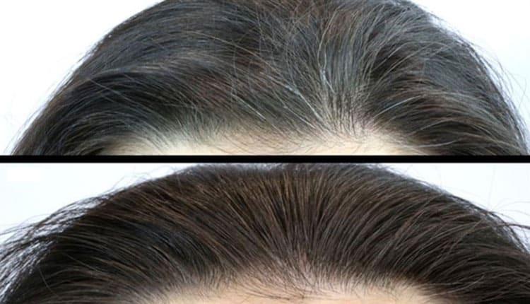 Beyazlayan saç tekrar siyahlaşır mı, saçtaki beyazlar nasıl yok olur?