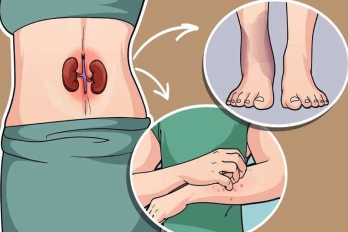 Böbreklerinizin Sağlıksız Olduğunu Gösteren 7 İşaret!