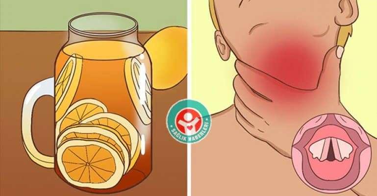 Boğaz Ağrısı İçin 12 Doğal Ve Etkili Çözüm