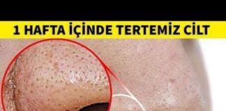 Burnunuzda bulunan siyah noktalardan kurtaracak 5 yöntem