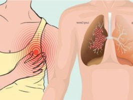 Çağımızın ölümcül hastalığı akciğer kanserinin 12 belirtisi