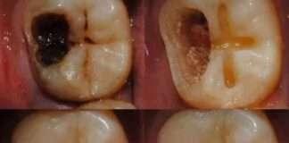 Aspirin Diş Çürüklerini Onarıp Yeniliyor!