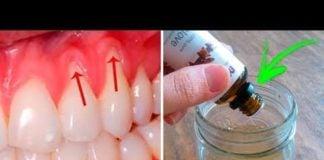 Diş Eti Çekilmesine Muhteşem Doğal Çözüm!