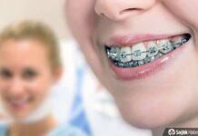 Diş teli ile dişler nasıl fırçalanır?