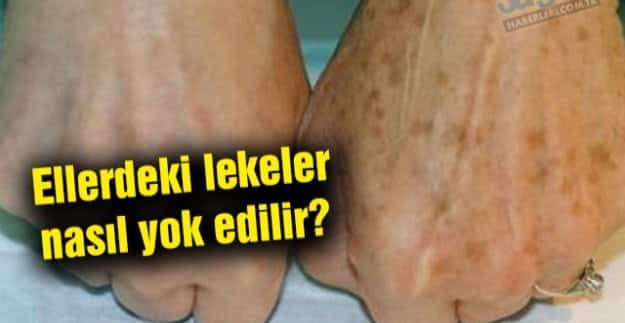 Ellerdeki lekeler nasıl yok edilir?