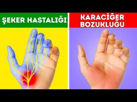 Ellerinizin sizi uyardığı 12 sağlık sorunu göz ardı etmeyin