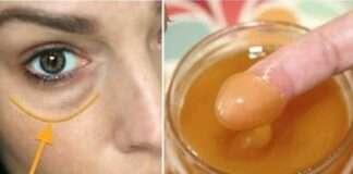 Göz altı morlukları doğal olarak nasıl geçer? Ne iyi gelir?