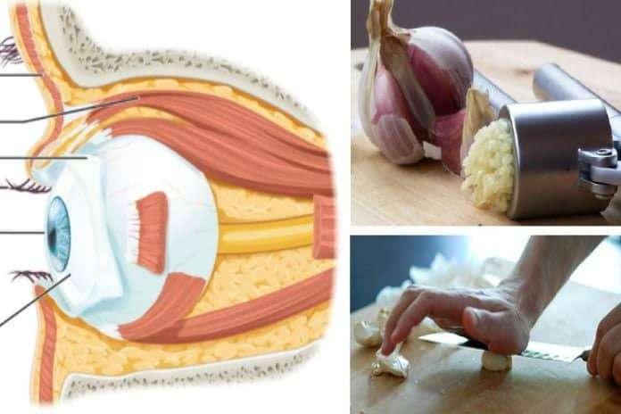 Gözlük Ve Ameliyat Olmadan Görme Kaybınızı Sarımsakla Tedavi Edin!