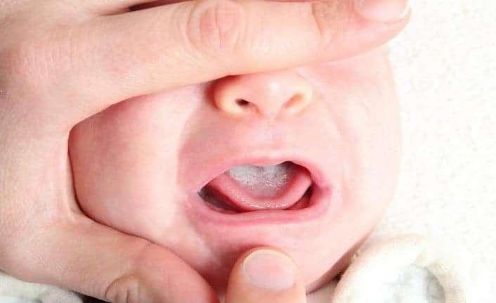 Güvenli ve etkili bebek ağız bakımı nasıl yapılır?