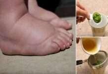 Kadınların En Büyük Derdi Ödem İçin Çay Tarifi