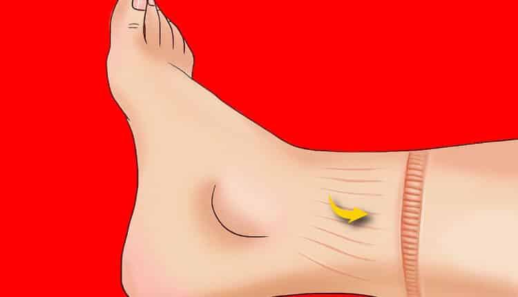 Şişmiş bacaklar, ayak bilekleri ve ayaklar: