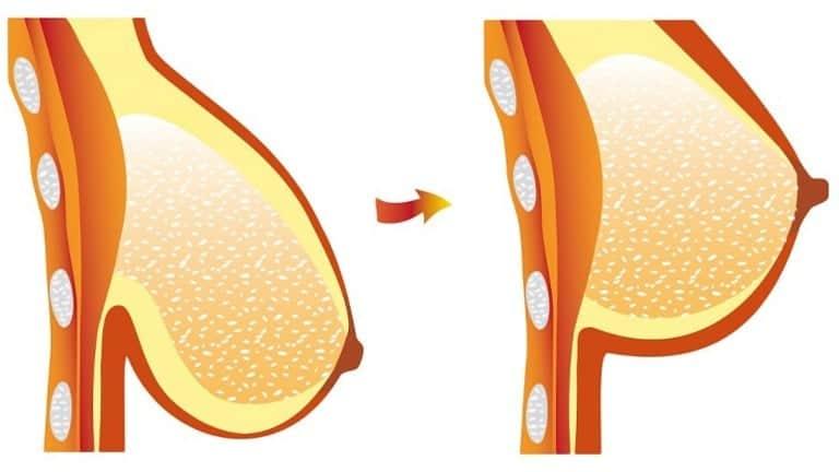 Sarkan Göğüsler Nasıl Dikleşir? Dik Göğüsler İçin Evde Doğal Çözüm