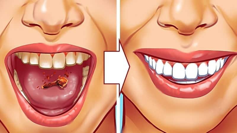 maxresdefault 4 1 Dişçiye Gitmeden Diş Taşlarınızı Yok Edecek Ev Yapımı Karışım!