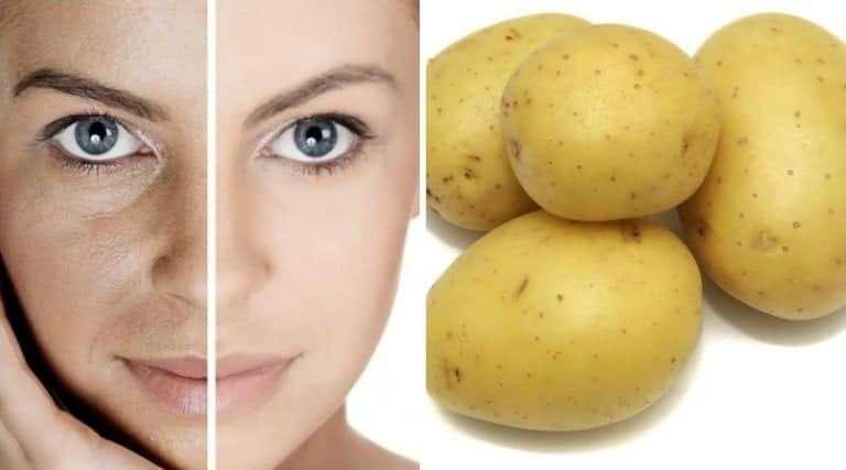 maxresdefault 7 Cilt Bakımında Patates Mucizesi