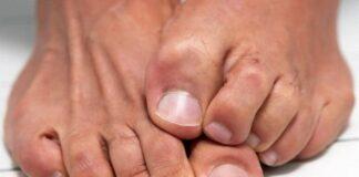 Ayak Mantarı Neden Olur? Nasıl Geçer? Evde Ayak Mantarı Tedavisi
