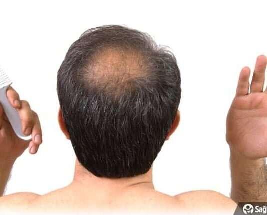 Saç dökülmesini önleyen 12 mükemmel gıda