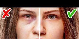 Sağlık sorununuz olduğunu gösteren yüzünüzde gizli 11 işaret