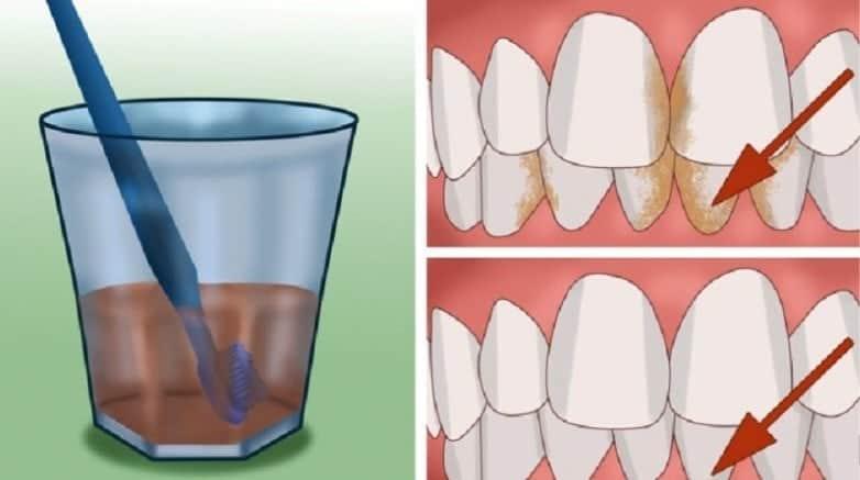 Diş Tartarı Nasıl Yok Edilir? Doğal Çözüm! Evde
