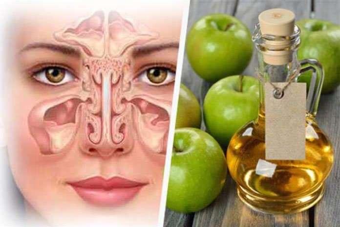 Sinüs Enfeksiyonu Ve Bronşit İçin Doğal Formül