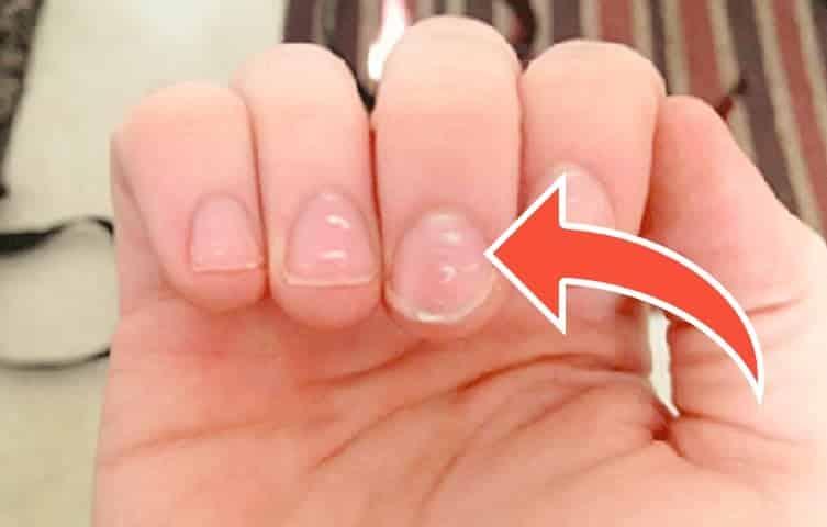 Tırnaktaki beyaz lekeler neden olur? Hangi hastalığın habercisidir?