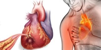 Trigliseridlere, lipidlere, kan şekerine ve kolesterol'e elveda deyin
