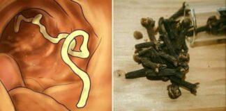 Vücudunuzda parazit olduğunu gösteren 10 belirti ve onları yok edecek 7 gıda