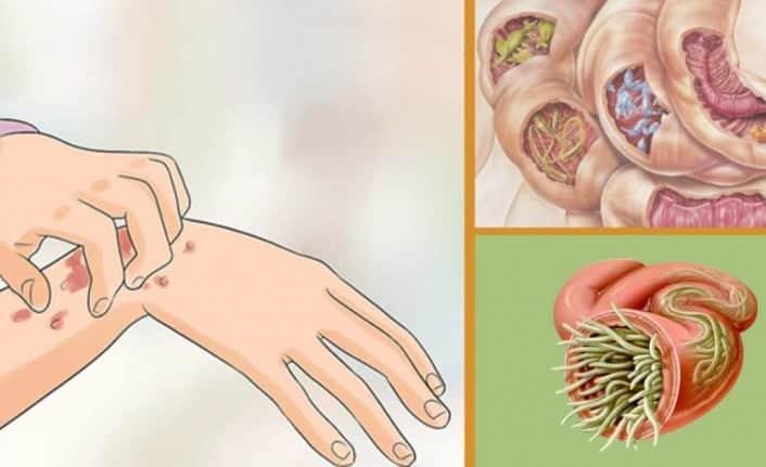 Vücudunuzdaki parazitleri doğal yöntemlerle yok edin!