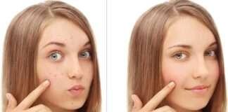 Yüz lekeleri için 7 doğal maske tarifi