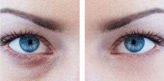 Göz Altı Morlukları Neden Olur? Göz Altı Morluklarına Ne İyi Gelir? Bitkisel Tedavi Yöntemleri Nelerdir?
