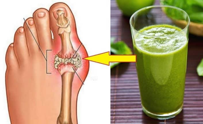 Gut Hastalığı Nedir? Gut Hastalığı Belirtileri Nelerdir?