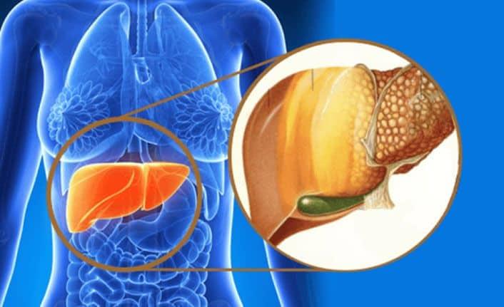 Karaciğer Yağlanması Nedir? Karaciğer Yağlanmasına İyi Gelen 7 Yiyecek