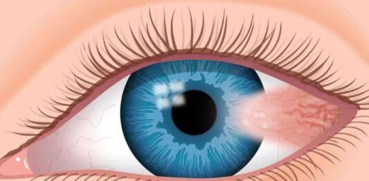 Gözde Pterygium - Pterjium( Kuşkanadı Hastalığı Veya Gözde Et Yürümesi) Nedir?
