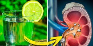 Limon Suyu Faydaları Nelerdir Limon Suyu ile Tedavi Edebileceğiniz 8 Sağlık Problemi