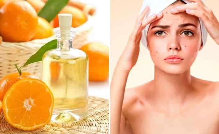 Portakal Yağının Faydaları Nelerdir? Neye İyi Gelir? Nasıl Kullanılır?