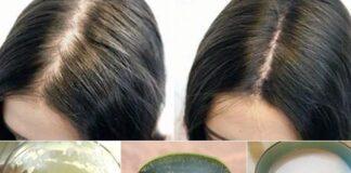 Saç Dökülmesi Sebepleri Nelerdir? Nasıl Önlenir? Ne İyi Gelir?
