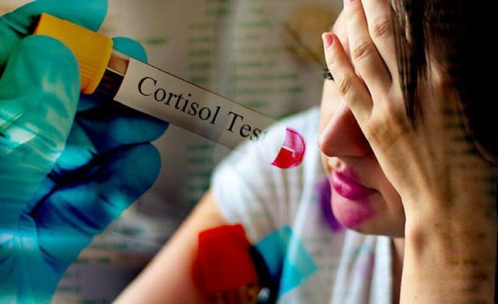 Yüksek Kortizol Değerini Düşüren Doğal Tedaviler