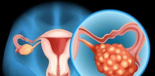 Yumurtalık Kanseri Nedir? Neden Olur Belirtileri Neler? Nasıl Teşhis Edilir?
