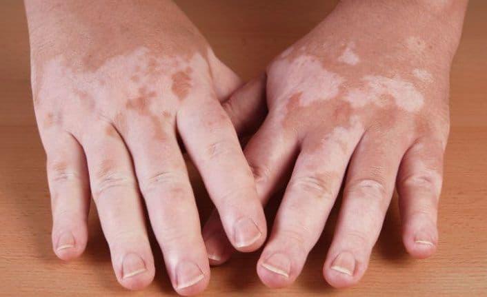 Addison Hastalığı Nedir Belirtileri, Nedenleri ve Tedavi Yöntemleri Nelerdir