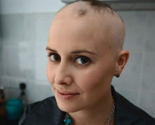 Alopesi Saç Dökülmesi Nedir Belirtileri, Nedenleri ve Tedavisi