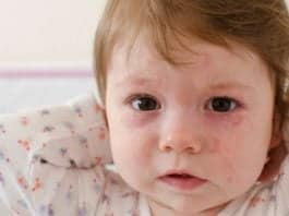Altıncı Hastalık Nedir Belirtileri ve Tedavi Yöntemleri Nelerdir