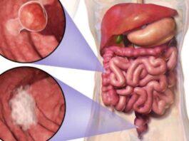Kolon Kanseri Nedir Belirtileri, Nedenleri ve Tedavi Yöntemleri Nelerdir
