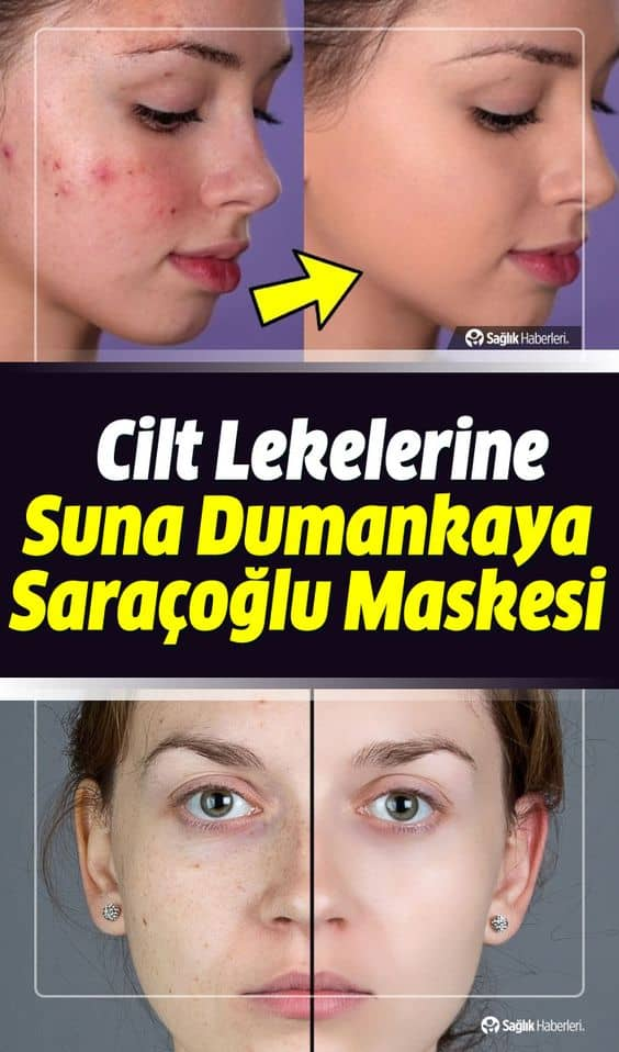 Geçmeyen cilt lekeleri için Suna Dumankaya ve İbrahim Saraçoğlu maske tarifleri ile cildiniz yeniden doğmuş gibi pürüzsüz olacak.