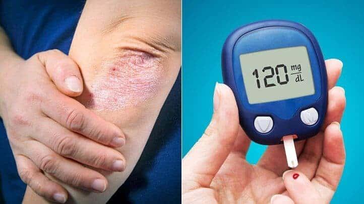 How Psoriasis and Type 2 Diabetes Are Linked Şeker Hastalığının 7 Önemli Belirtisi
