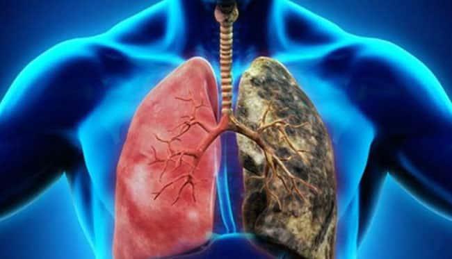 Akciğer kanserine karşı mutlaka tüketmeli!