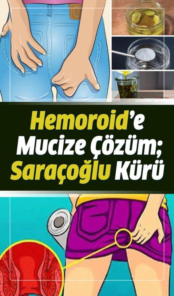 Sıkça karşılaşılan bir rahatsızlık olan hemoroid (basur) yaşattığı ağrılar sebebi ile hayatı kabusa çevirmektedir. Hemoroid belirtileri, tedavisi ve İbrahim Saraçoğlu bitkisel kürü makalemizin detayında.