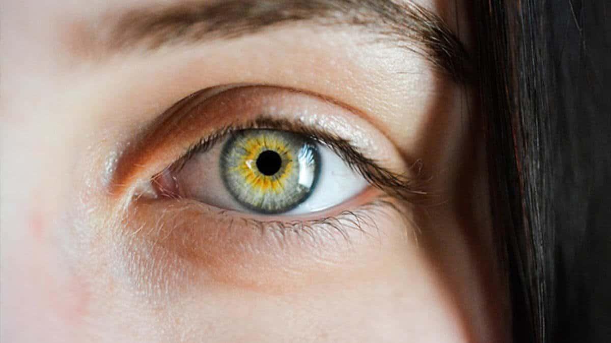 goz Gözlerde Kuruluk Hangi Hastalıkların Belirtisidir?